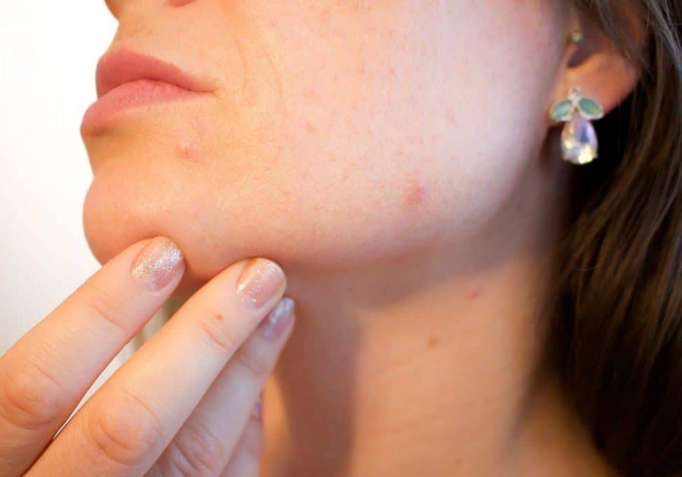 acne-clinica-anglo americana